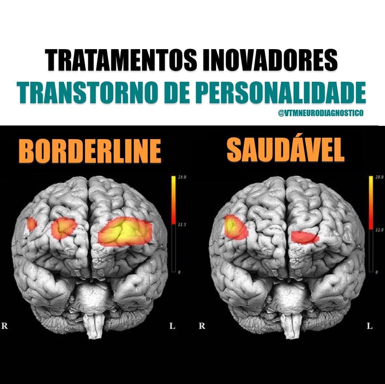 Transtorno da Personalidade Borderline e o Cérebro: Tratamentos Inovadores