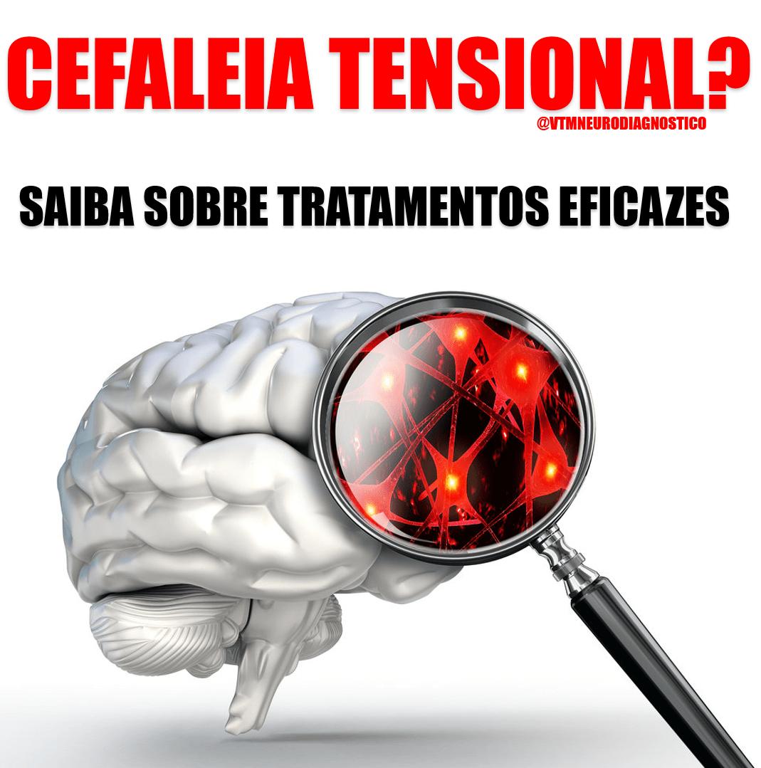 Cefaleia tensional? Saiba sobre tratamentos eficazes