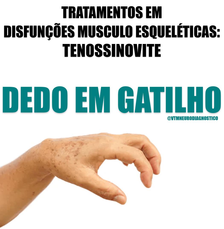 """TENOSSINOVITE: Saiba como acabar com o """"Dedo no Gatilho"""""""