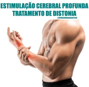 tratamento distonia