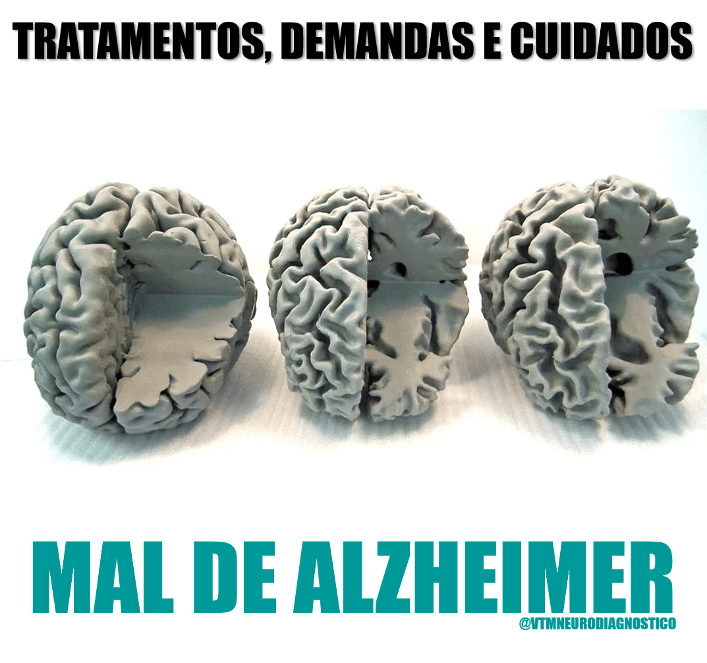 Alzheimer: demandas, cuidados e tratamentos.