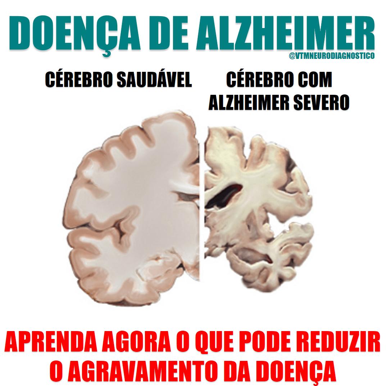 Mal de Alzheimer: Como reduzir o agravamento da doença.