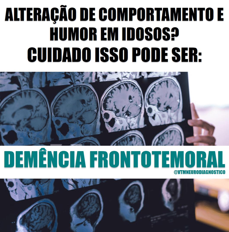 Alteração de comportamento e humor em idosos: Cuidado, isso pode ser uma demência frontotemporal!