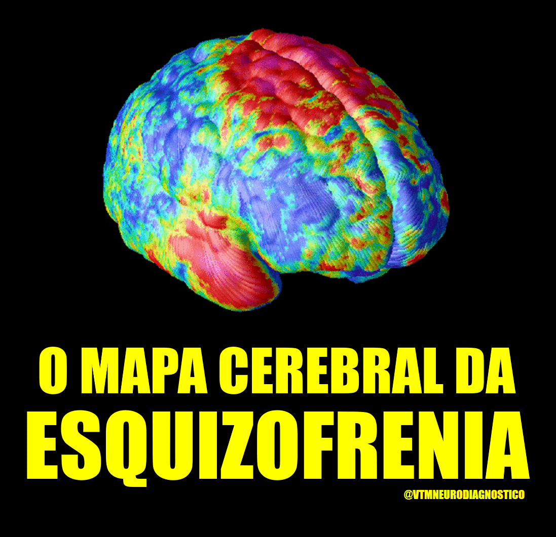 Mapeamento Cerebral da Esquizofrenia